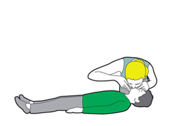 After 30 compressions, open the airway and give two breaths.